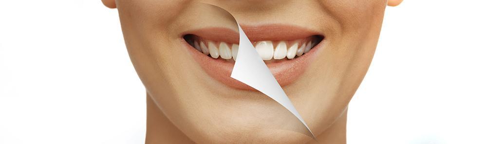 отбеливание зубов лампой холодного света